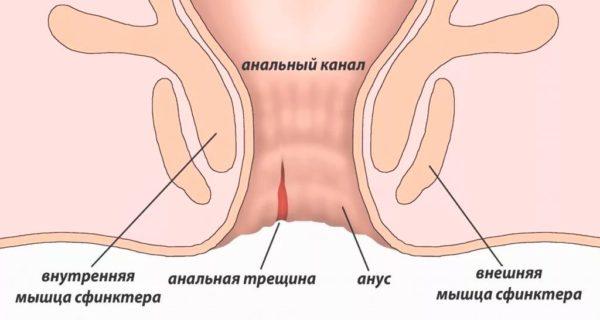 Свечи от трещин в заднем проходе: ранозаживляющие, обезболивающие