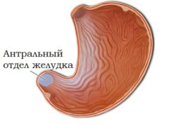 антральный отдел желудка