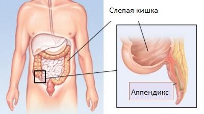 аппендикс в кишечнике