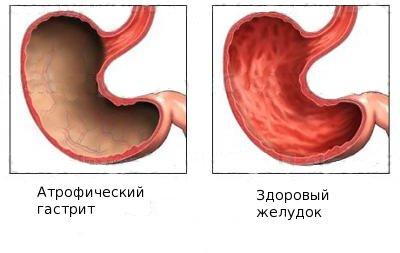 атрофия желудка