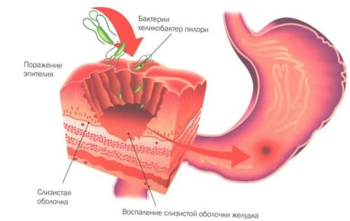 бактерии на стенках жуледка