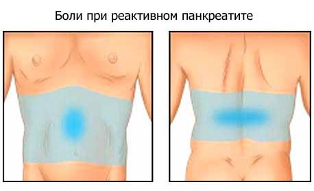 локализация болей при реактивном панкреатите