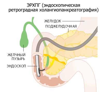 диагностика поджелудочной
