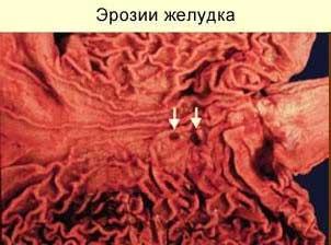 повреждение слизистой желудка