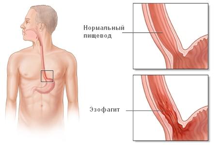 эзофагит пищевода