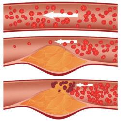 холестериновые бляшки