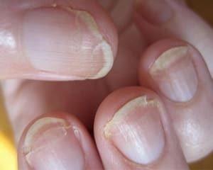 хрупкие ногти