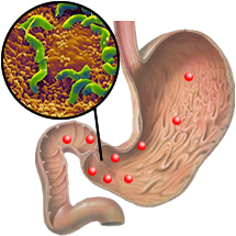 инфекция в желудке