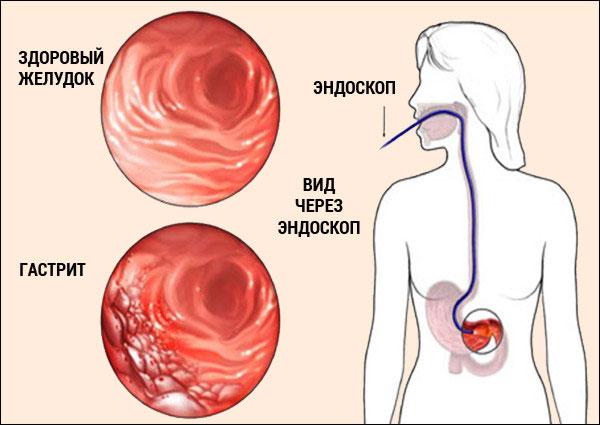 сравнение гастрита и здорового желудка