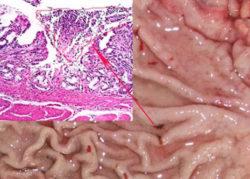 грибок кандидоза