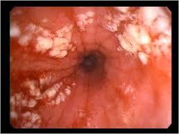 грибковый эзофагит