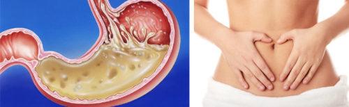 кислотность желудка