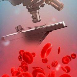 кровь и микроскоп