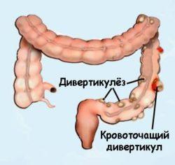 кровотечение в кишечнике
