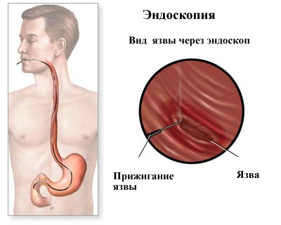 операция через эндоскоп