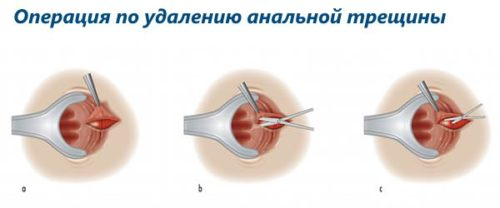 операция на прямой кишке