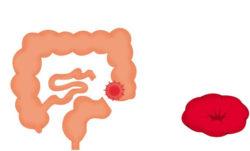 искусственное отверстие в кишечнике