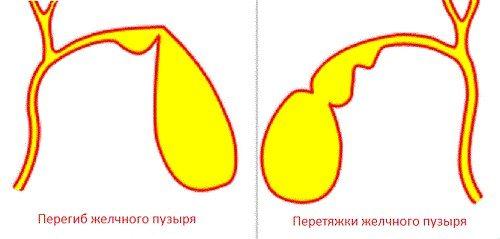 peregib-i-peretyazhki-zhelchnogo-puzyrya
