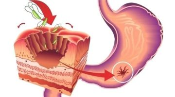 перфорация желудка