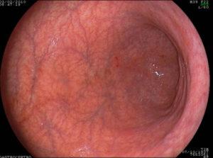поверхность слизистой оболочки желудка