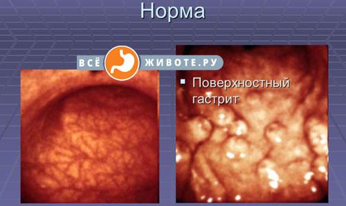 поверхностная форма геморрагического гастрита
