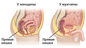 строение прямой кишки у женщин и мужчин