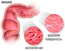 proctosigmoiditis-1