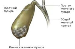 протоки желчного пузыря