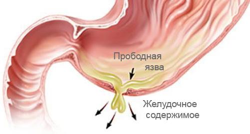 содержимое желудка поступает в брюшную полость