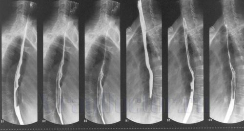 рентген пищевода с барием
