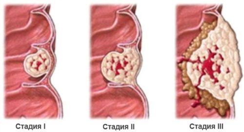 стадии опухоли