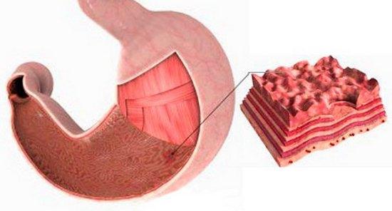стенки желудка в разрезе