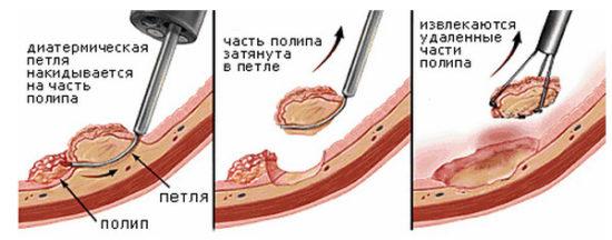 удаление полипов эндоскопическим методом