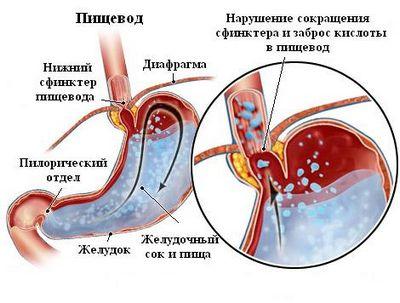 выброс желудочного сока в пищевод