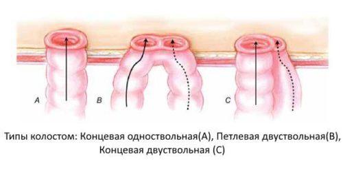виды отверстий в кишечнике