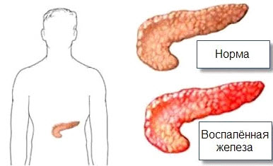 воспаление панкреатита