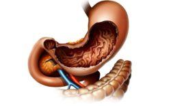 воспаление желудка