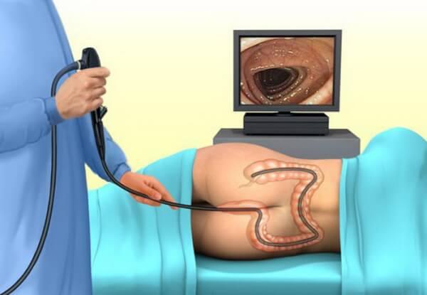 врач исследует кишечник