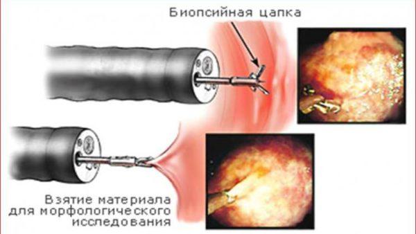 взятие биологического материала из желудка
