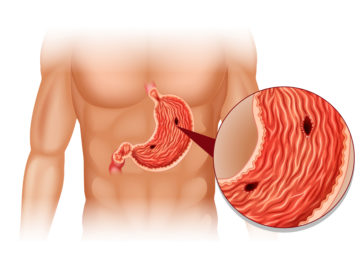 Stomach Ulcer in human body illustration