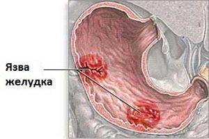 как выглядит язва в желудке