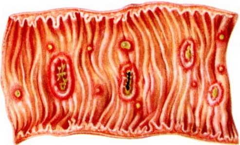 язвы на стенках кишечника