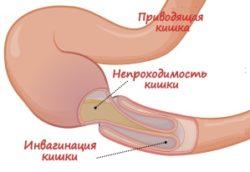 непроходимость кишечника