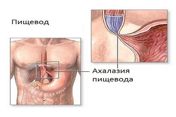 ахалазия пищевода