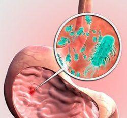 бактерии в желудке