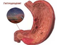 гастродуоденит желудка