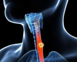 инородное тело в горле