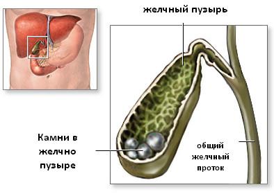 Как растворить камни в желчном пузыре без операции: эффективные препараты и народные средства