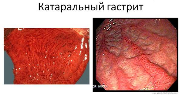 катаральный гастрит