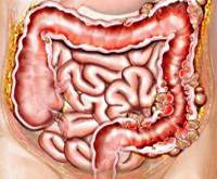 воспаленный кишечник